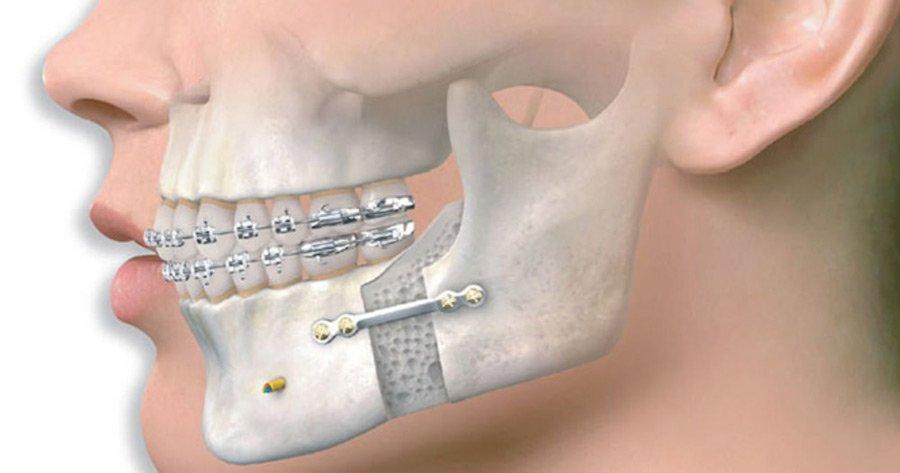 Кафедра пластической и челюстно-лицевой хирургии