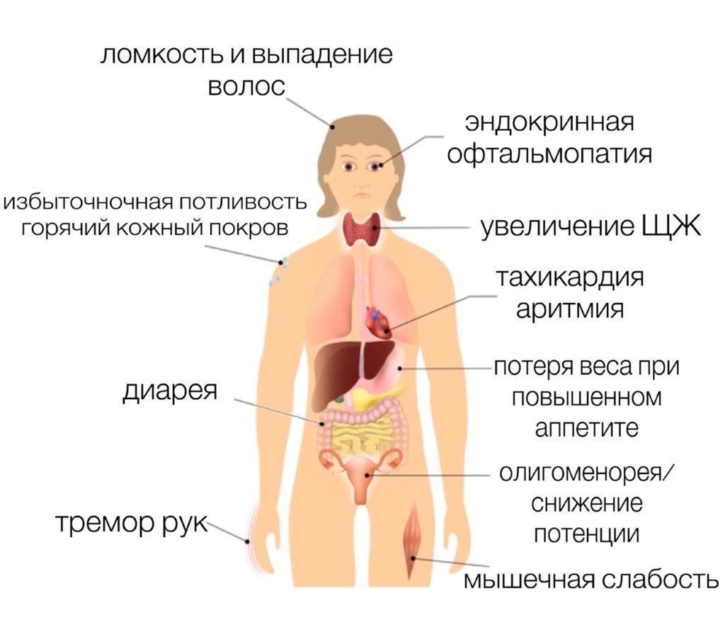 Диффузно узловой токсический зоб 3 степени
